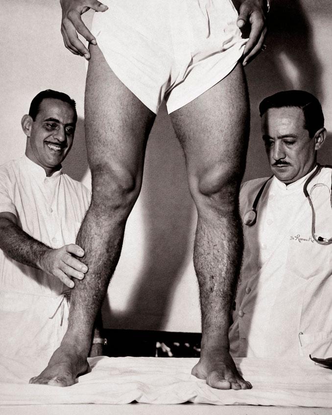 Piernas de Garrincha durante una exploración médica