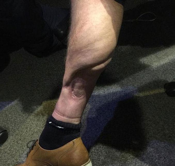 Imagen actual de la pierna izquierda de David Busst - Odio Eterno Al Fútbol Moderno