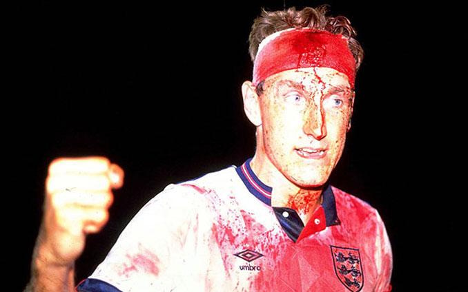 Terry Butcher, el futbolista que sudó sangre - Odio Eterno Al Fútbol Moderno